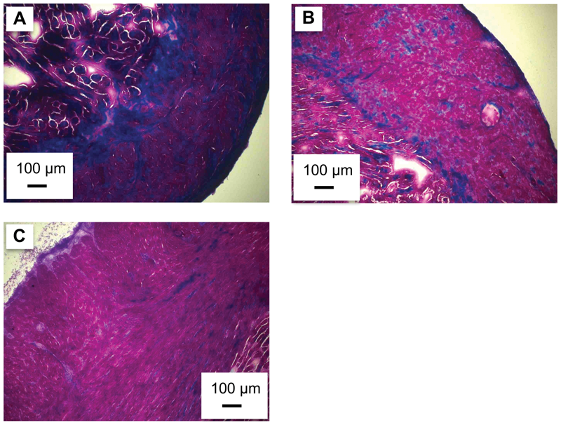 Influence of thermal acclimation on connective tissue content of the trout heart