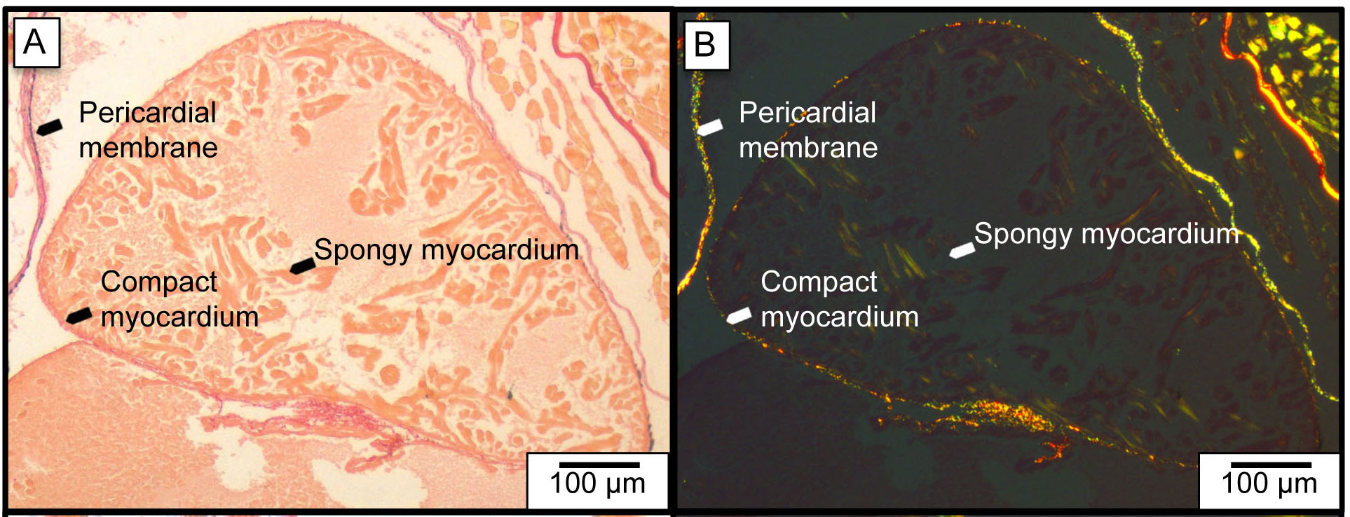 Connective tissue in zebrafish heart